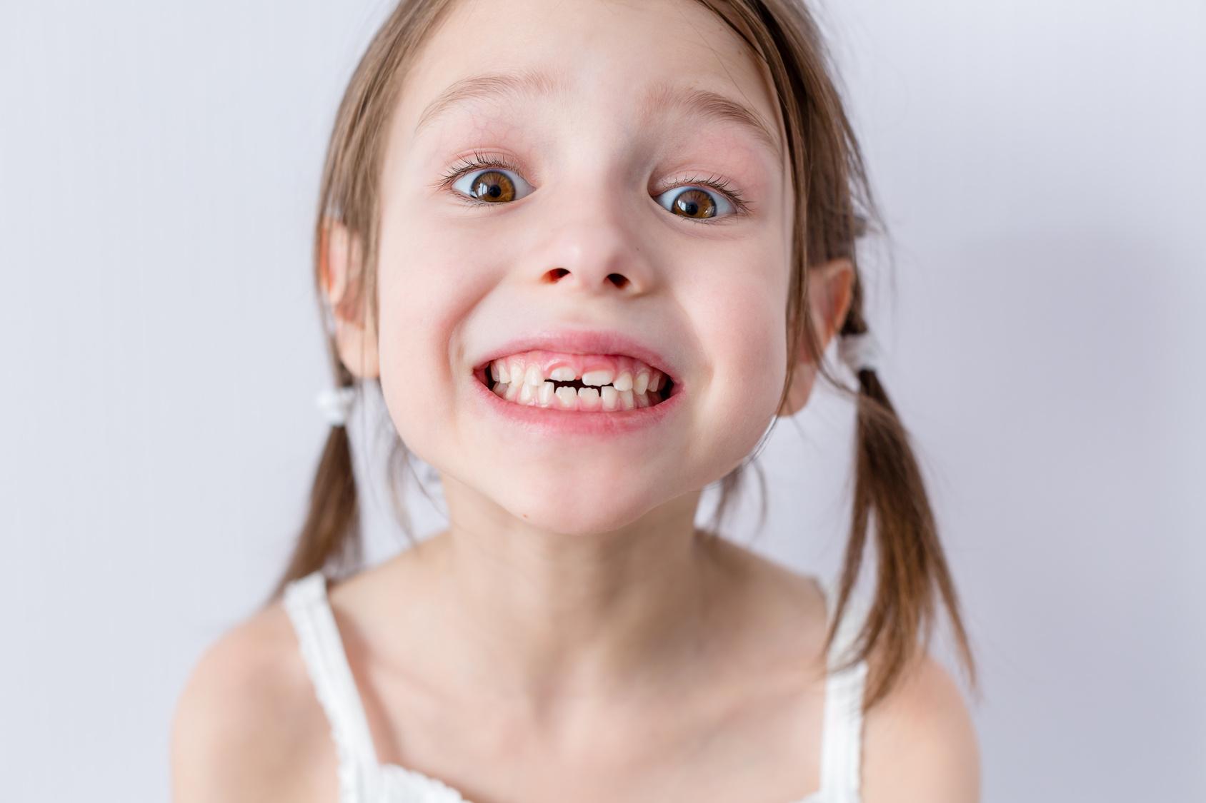 dientes leche dientes definitivos