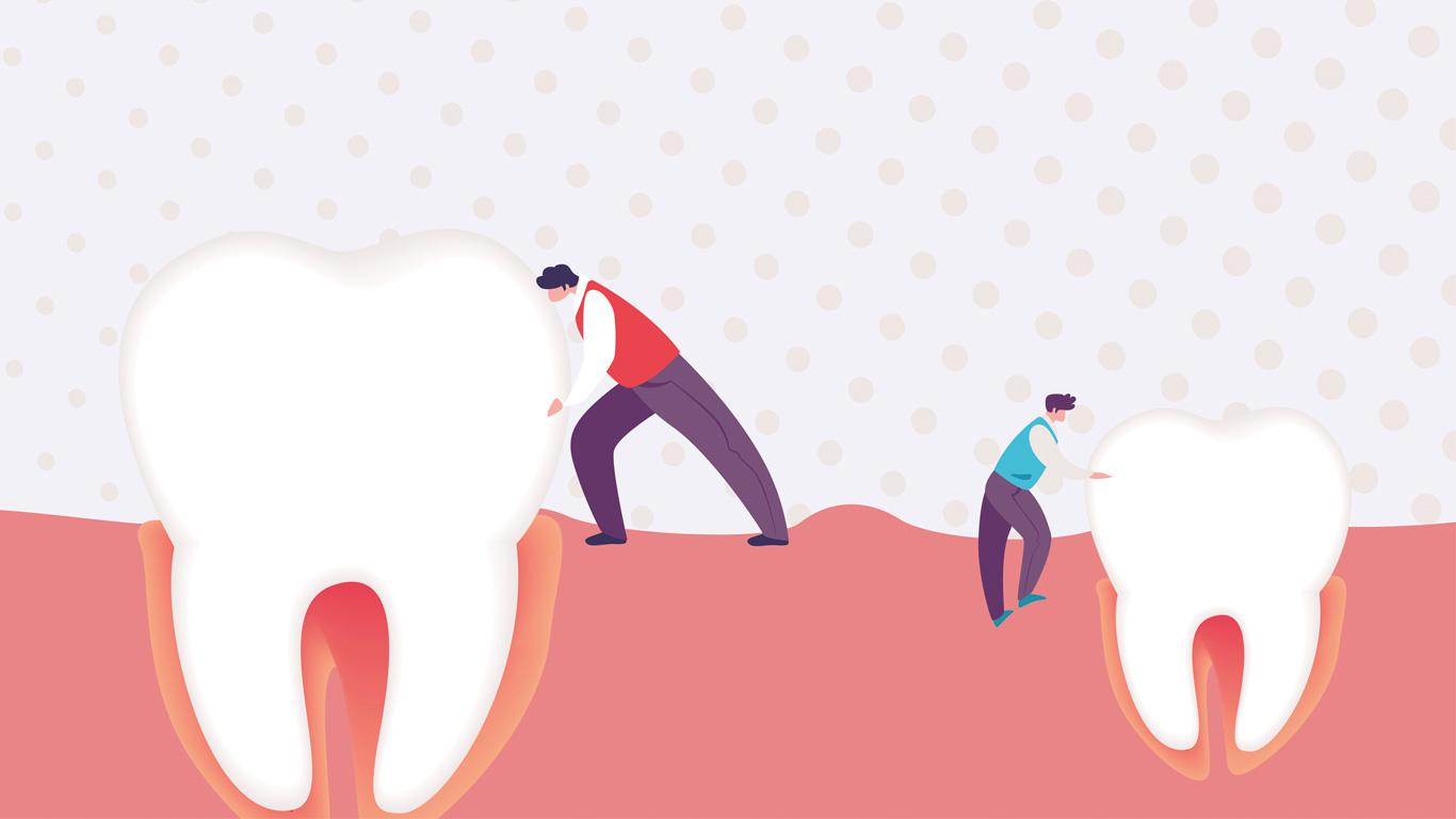 maloclusion mala posicion dientes